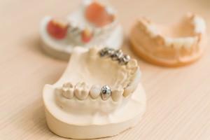 大阪でインビザラインが得意な歯科医院の選び方